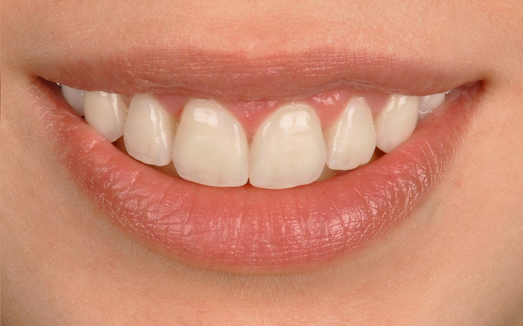Beispielbild Rot-Weiß-Ästhetik, lächeln