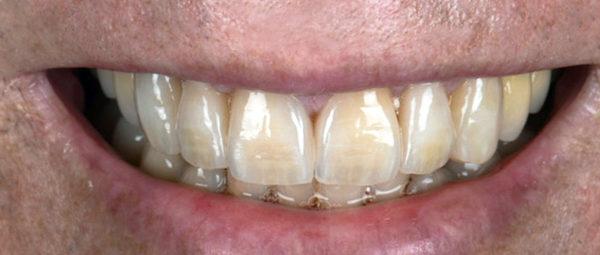 Beispielbild passende Zähne