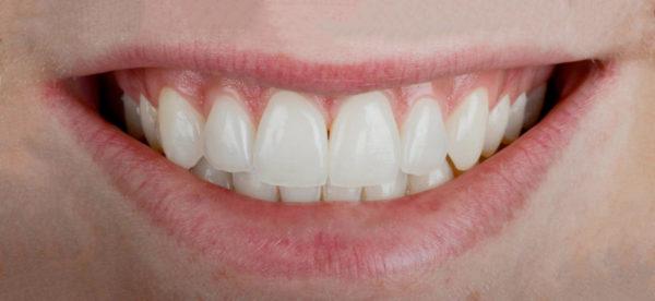 Beispielbild makellose Zähne